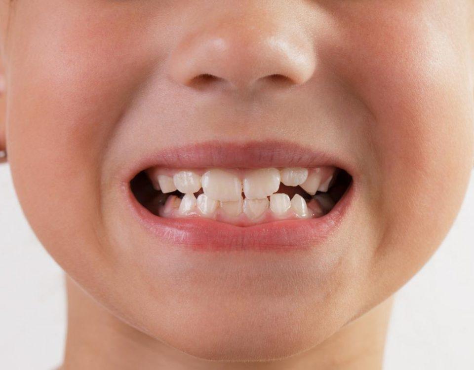 Однако если вовремя не сделать этого, от молочных зубов могут остаться одни пеньки.