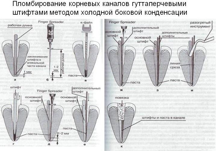 Метод холодной боковой конденсации