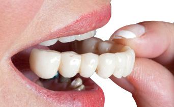 зубное протезирование цены