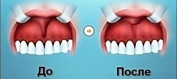 Пластика преддверия полости рта