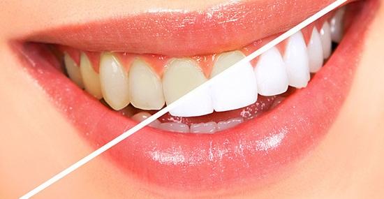 Отбеливание зубов ZOOM 3 по выгодным ценам