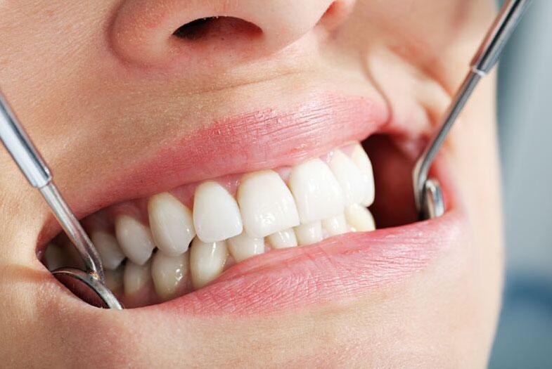 цены на несъемное протезирование зубов