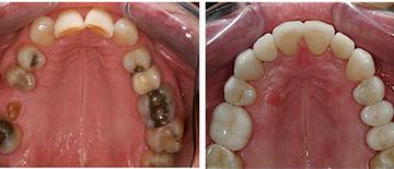 несъемное протезирование зубов стоимость
